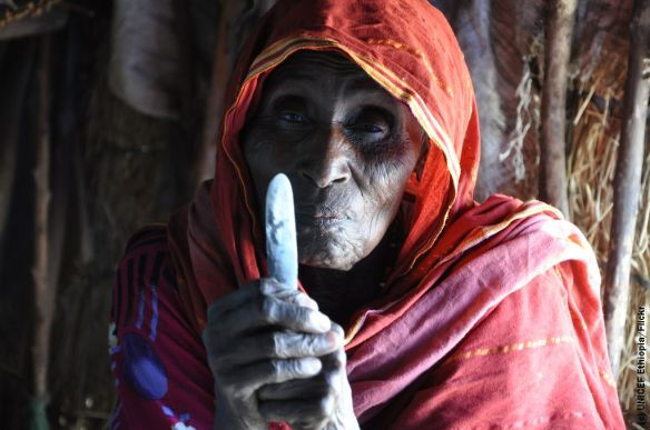 FGM Ethopia